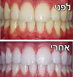 הלבנת שיניים - לפני אחרי