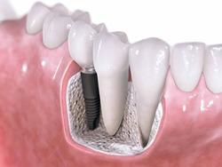 השטלת שיניים